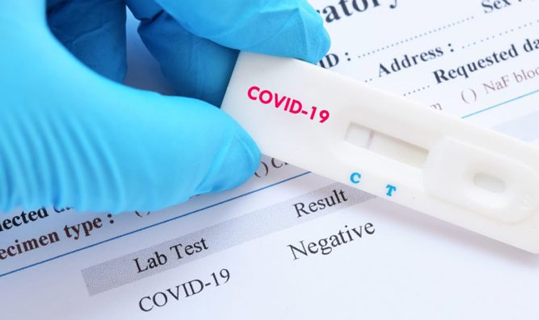 Travel To France Obligation To Submit A Virologic Screening Consulat General De France A Chicago
